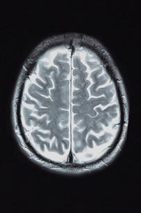 頭部MRI画像の写真素材 [FYI00430847]
