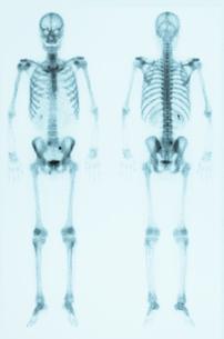骨シンチグラフィーの写真素材 [FYI00430848]