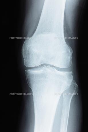 膝関節の素材 [FYI00430849]