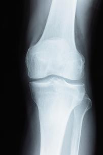 膝関節の写真素材 [FYI00430849]
