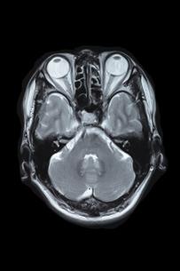 脳MRI画像の写真素材 [FYI00430852]