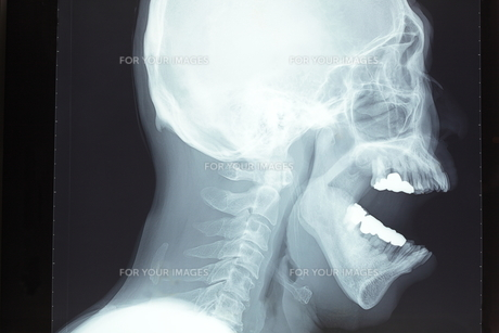 頭蓋骨の素材 [FYI00430854]