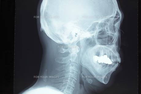 頭蓋骨の写真素材 [FYI00430857]