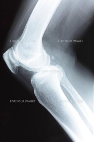 膝関節の素材 [FYI00430858]