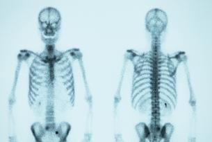 骨の写真素材 [FYI00430862]