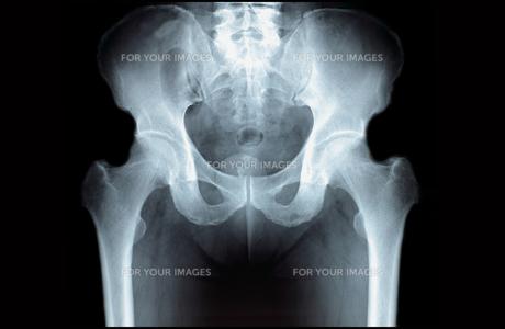 骨盤 股関節の写真素材 [FYI00430863]