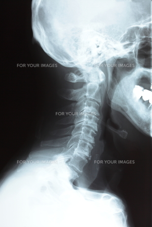 頚椎の写真素材 [FYI00430864]
