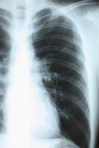 健康診断の写真素材 [FYI00430865]