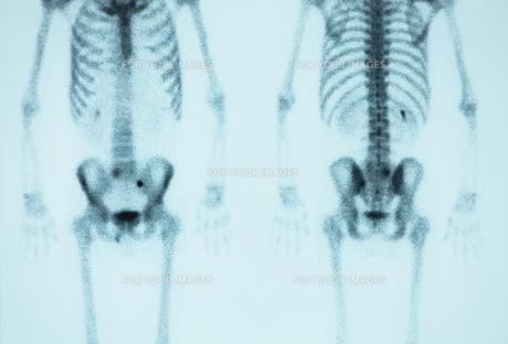 骨の素材 [FYI00430867]