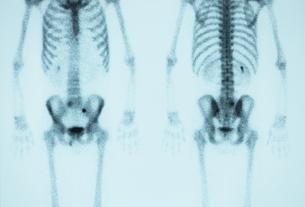骨の写真素材 [FYI00430867]