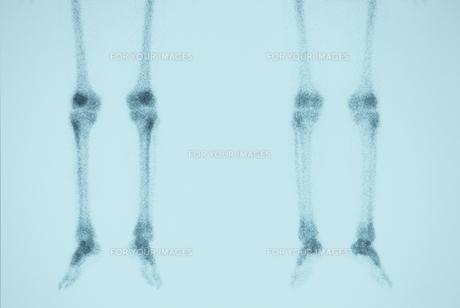 骨の素材 [FYI00430871]
