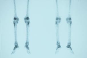 骨の写真素材 [FYI00430871]
