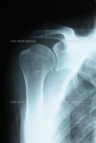 肩関節の写真素材 [FYI00430872]