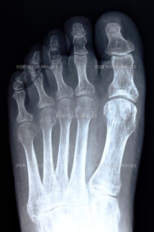 足の骨の写真素材 [FYI00430874]