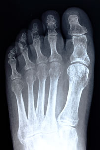 足の骨の素材 [FYI00430874]