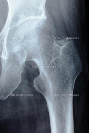 股関節の写真素材 [FYI00430875]
