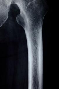 大腿骨の写真素材 [FYI00430878]