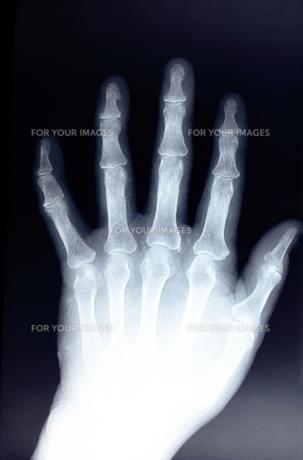左手の骨の素材 [FYI00430880]