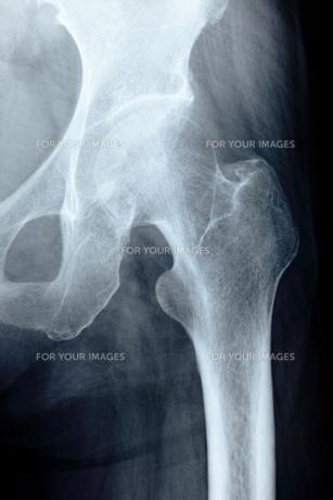 股関節の写真素材 [FYI00430883]