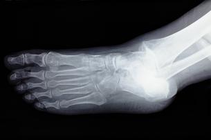 足の骨の素材 [FYI00430888]