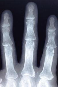 指の骨の写真素材 [FYI00430889]