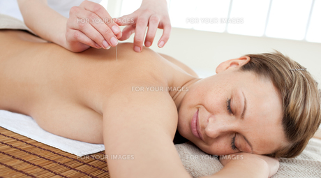 Acupuncture needles on a beautiful womans backの写真素材 [FYI00482954]