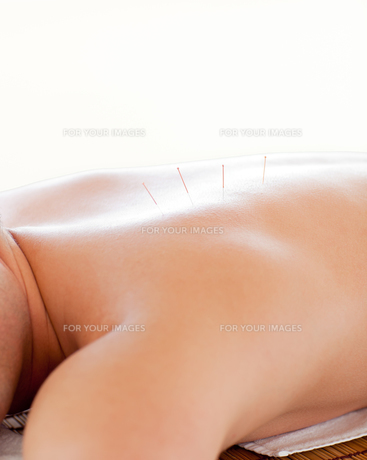Close up of a man receiving an acupuncture therapyの素材 [FYI00483168]