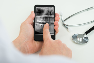 Person With Dental X-ray Film On Mobile Phoneの写真素材 [FYI00634254]