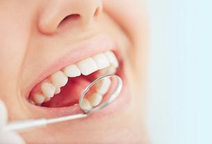 Dental checkupの素材 [FYI00635018]