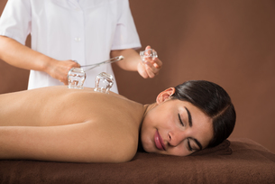 Young Woman Getting Cupping Treatmentの写真素材 [FYI00642132]