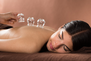 Woman Getting Cupping Treatment At Spaの写真素材 [FYI00642136]