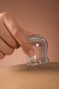 Person Giving Cupping Treatmentの写真素材 [FYI00642142]