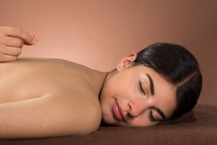 Woman Receiving Acupuncture Treatmentの写真素材 [FYI00642150]