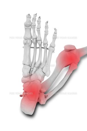 Heel and knee pain, Pain concept.の写真素材 [FYI00652838]