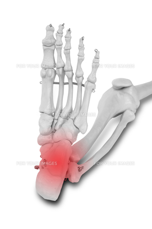 Heel and ankle pain, Pain concept.の写真素材 [FYI00652840]