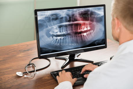 Doctor Looking At Teeth X-ray On Computerの写真素材 [FYI00654099]