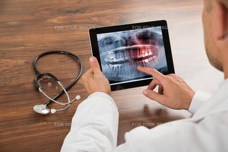 Doctor Looking At Human Teeth X-rayの写真素材 [FYI00654101]