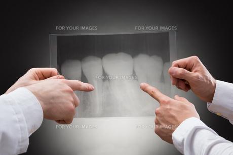 Doctors Examining Dental Xrayの素材 [FYI00657201]