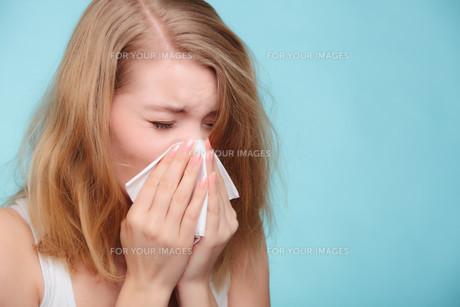 flu allergy. sick girl sneezing in tissue. healthの素材 [FYI00663324]