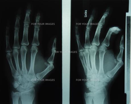 radiograph handsの素材 [FYI00678742]