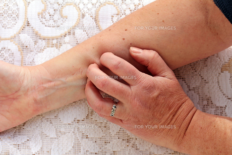 dry itchy skinの素材 [FYI00700557]