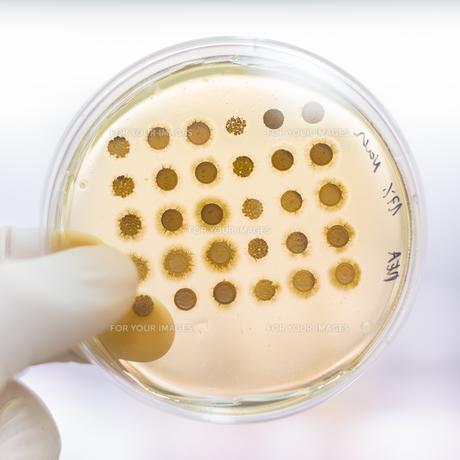 Fungi grown on agar plate.の写真素材 [FYI00743456]