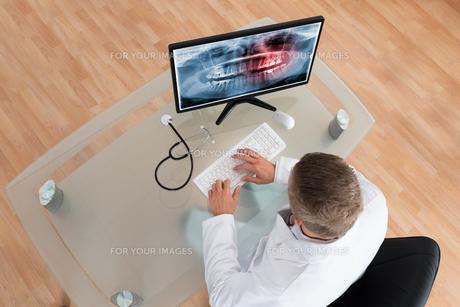 Doctor Examining Teeth X-rayの写真素材 [FYI00758733]
