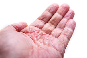The problem with many people - eczema on hand. Isolated backgroundの素材 [FYI00765370]