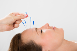 Young Woman Receiving Acupuncture Treatmentの写真素材 [FYI00767672]