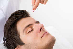Man Receiving Acupuncture Treatmentの写真素材 [FYI00767846]