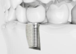 dental implant in a dentition modelの素材 [FYI00769242]