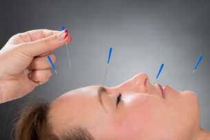 Person Putting Acupuncture Needle On Face Of Womanの写真素材 [FYI00778581]
