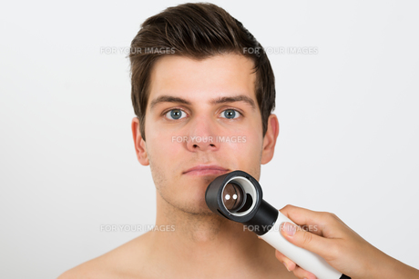 Person Examining Man Face With Dermatoscopeの素材 [FYI00778667]