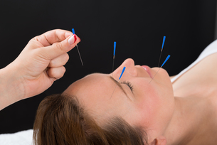 Person Putting Acupuncture Needle On Face Of Womanの写真素材 [FYI00781120]